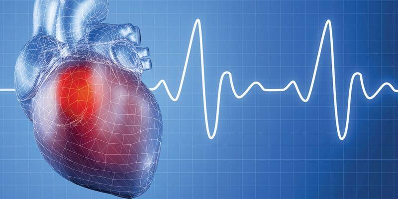 Cинусовая аритмия сердца